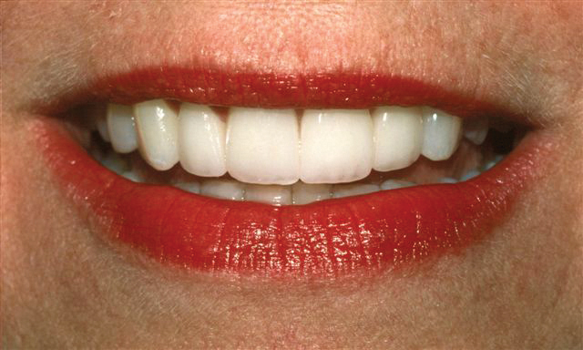 after veneers at Bellevue Dental Excellence
