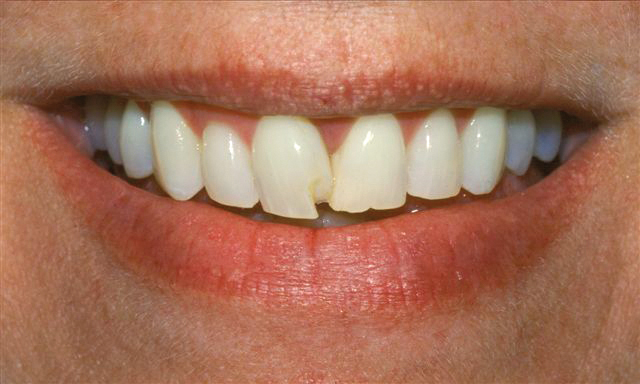before veneers at Bellevue Dental Excellence